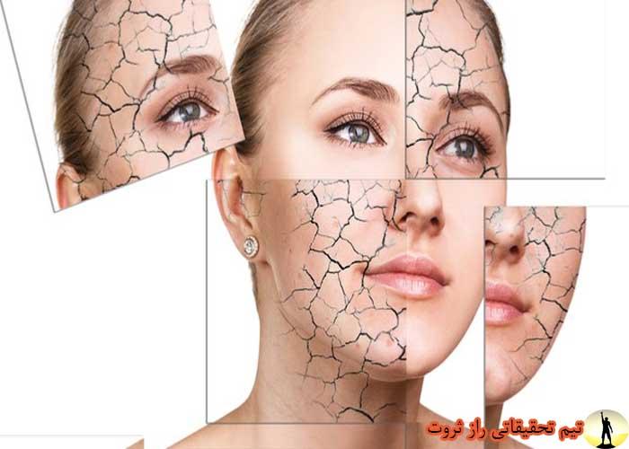 دلایل خشکی پوست چیست